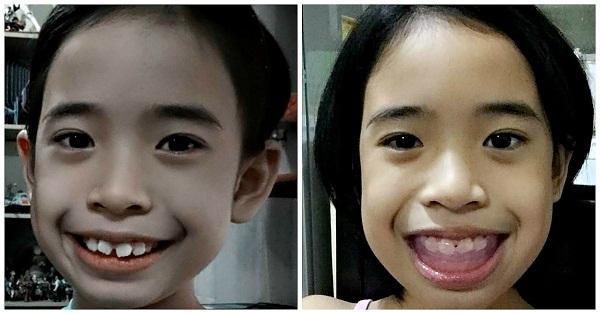 Crooked Teeth or Sungki